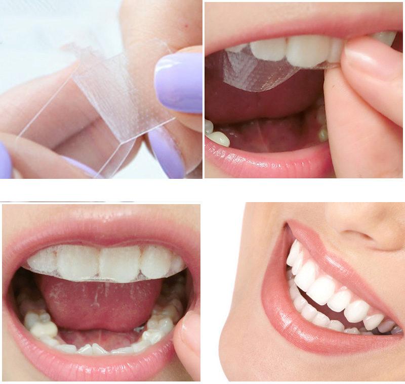aplicarea-benzilor-pentru-albirea-dintilor